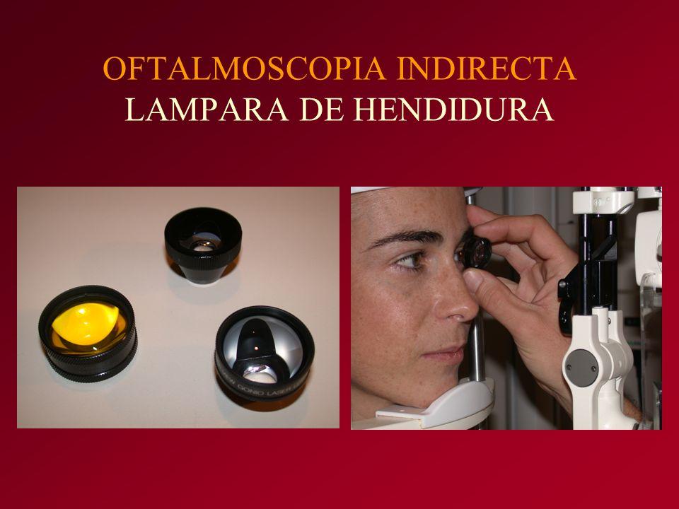 OFTALMOSCOPIA INDIRECTA LAMPARA DE HENDIDURA
