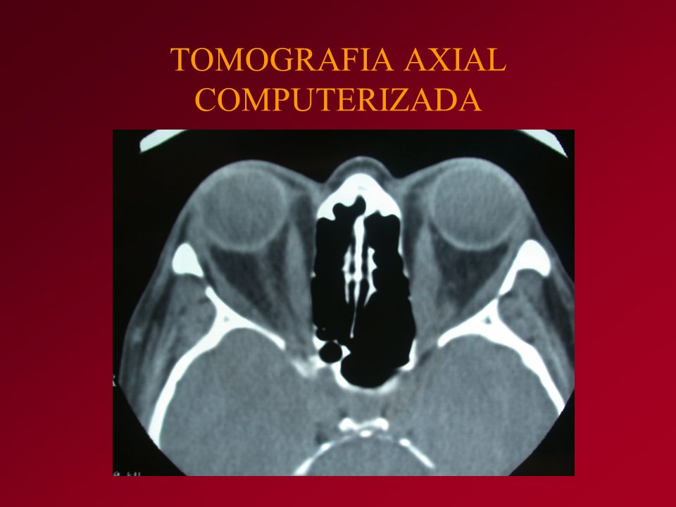 TOMOGRAFIA AXIAL COMPUTERIZADA