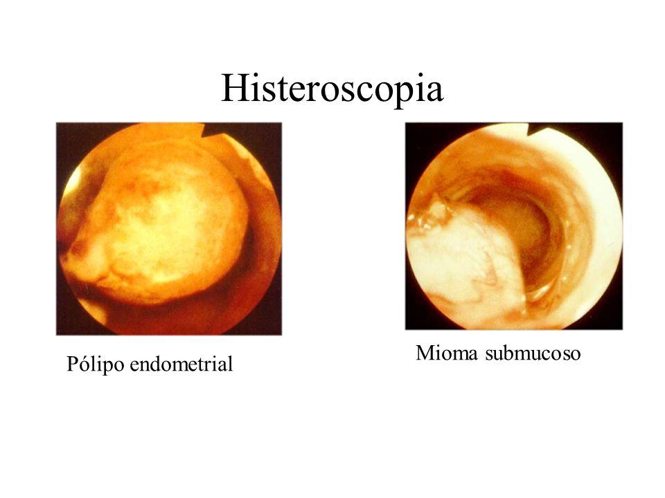 Histeroscopia Mioma submucoso Pólipo endometrial