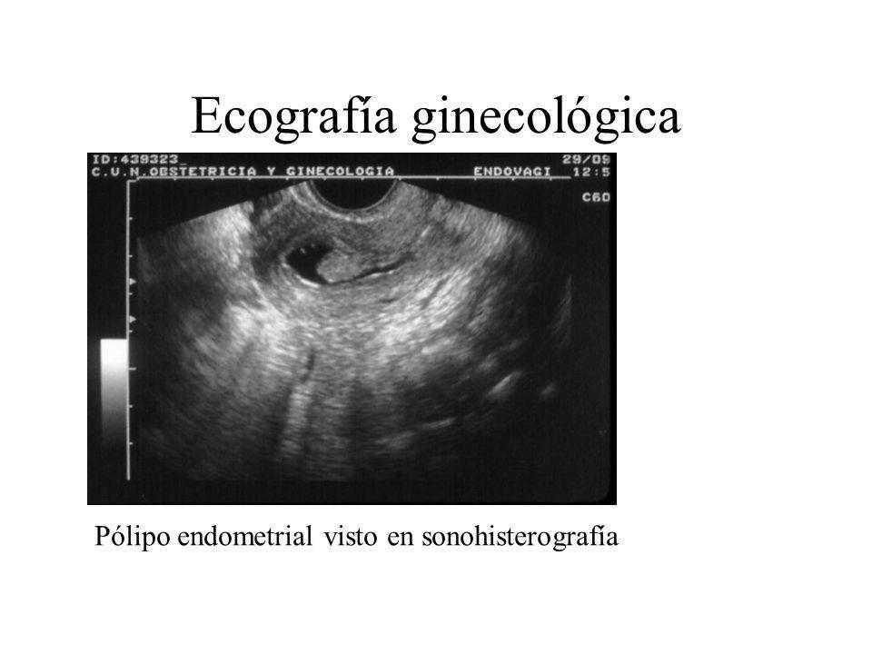 Ecografía ginecológica