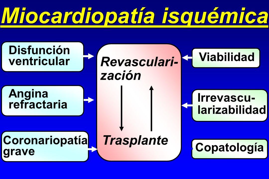 Miocardiopatía isquémica