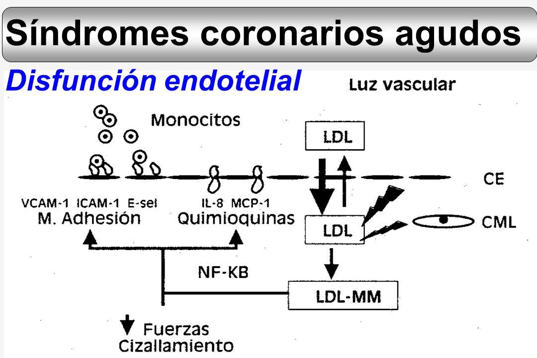 Síndromes coronarios agudos