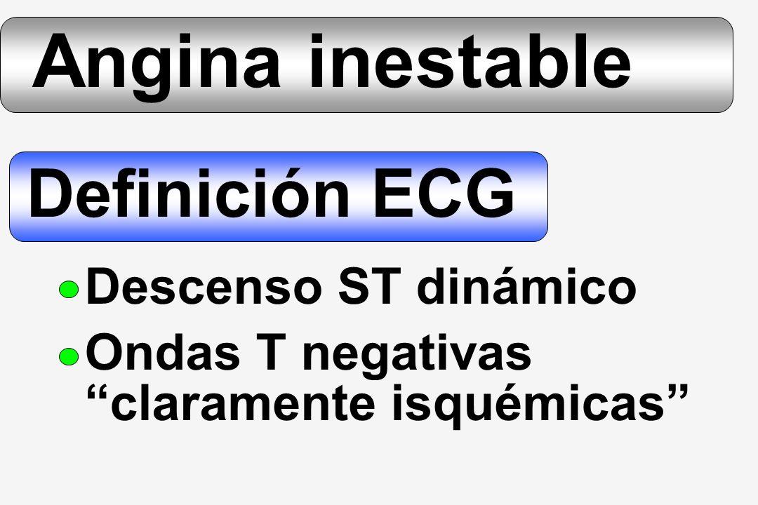 Angina inestable Definición ECG Descenso ST dinámico Ondas T negativas