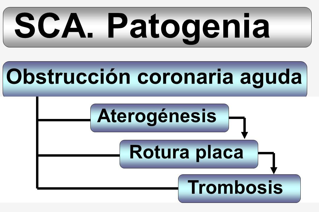 SCA. Patogenia Obstrucción coronaria aguda Aterogénesis