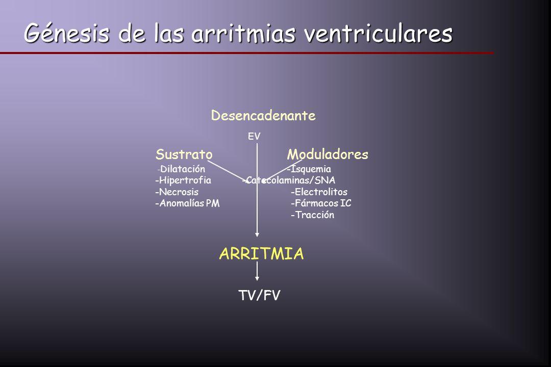Génesis de las arritmias ventriculares