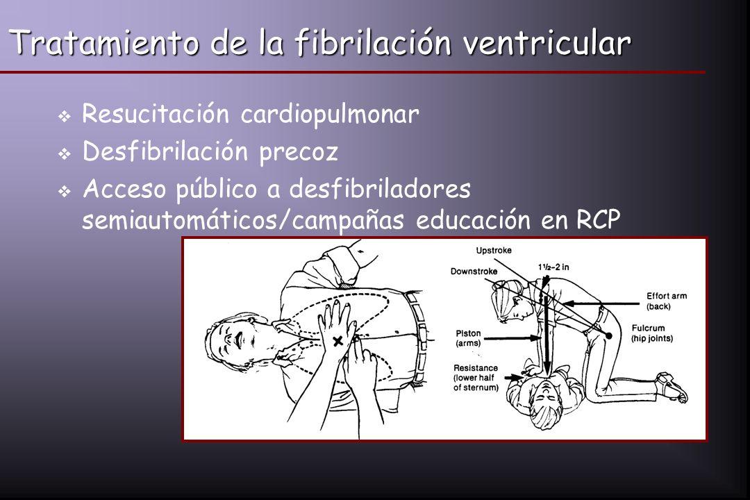 Tratamiento de la fibrilación ventricular
