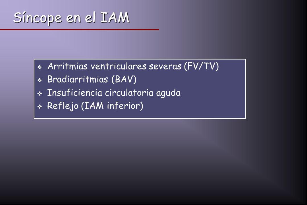 Síncope en el IAM Arritmias ventriculares severas (FV/TV)