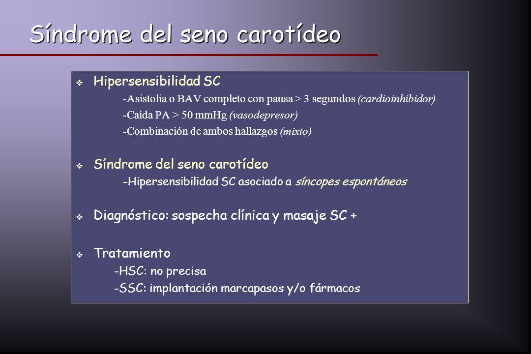 Síndrome del seno carotídeo