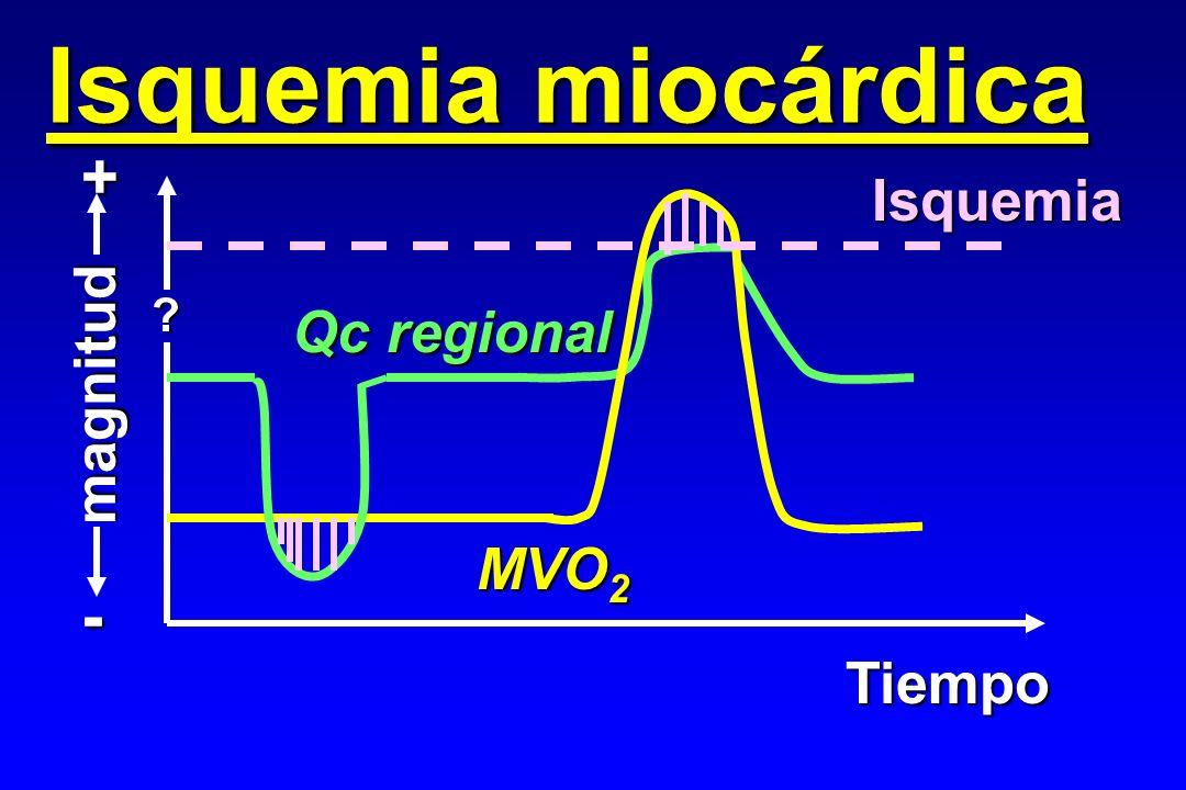 Isquemia miocárdica + Isquemia Qc regional magnitud MVO2 - Tiempo