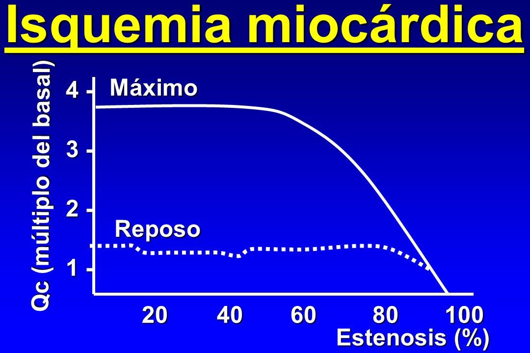Isquemia miocárdica Máximo 4 - 3 - Qc (múltiplo del basal) 2 - 1 -