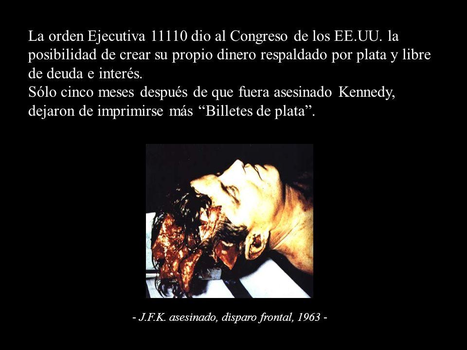 - J.F.K. asesinado, disparo frontal, 1963 -