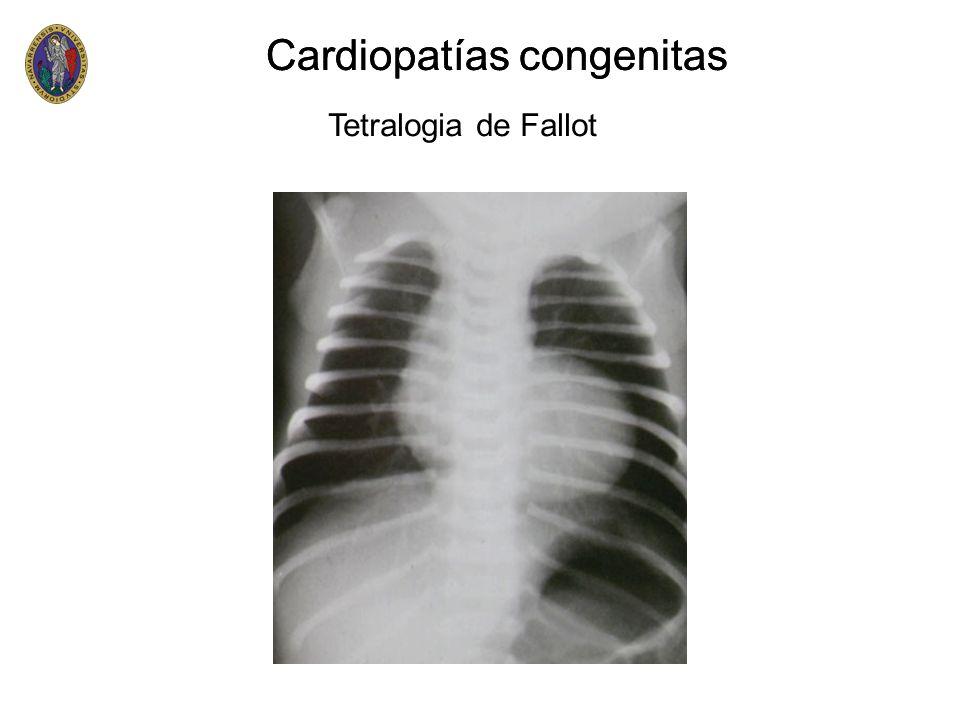 Cardiopatías congenitas Cardiopatías congenitas