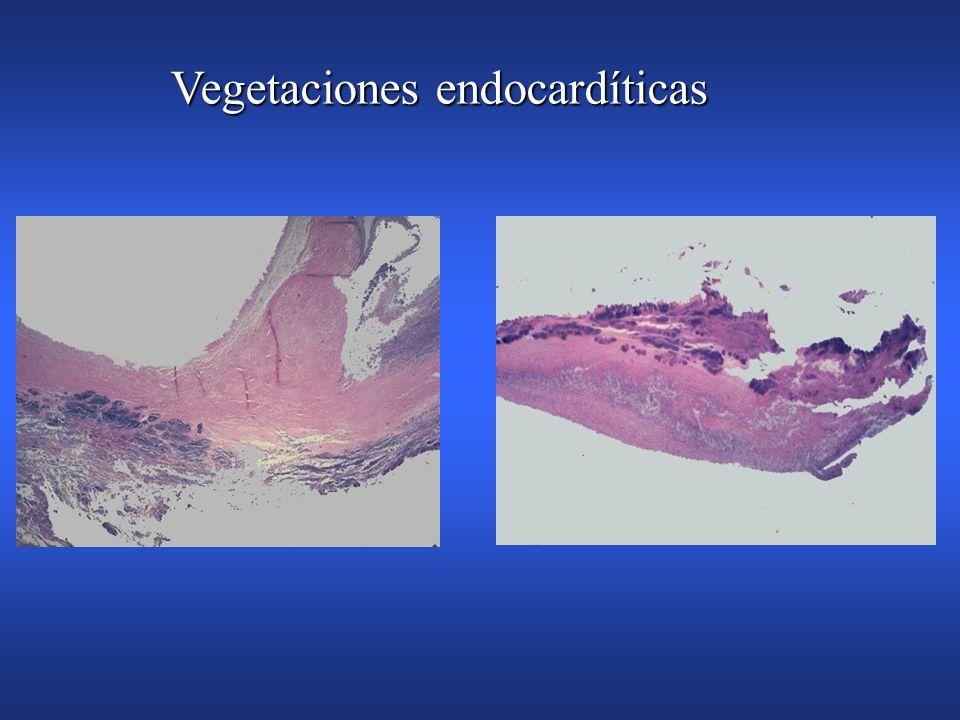 Vegetaciones endocardíticas