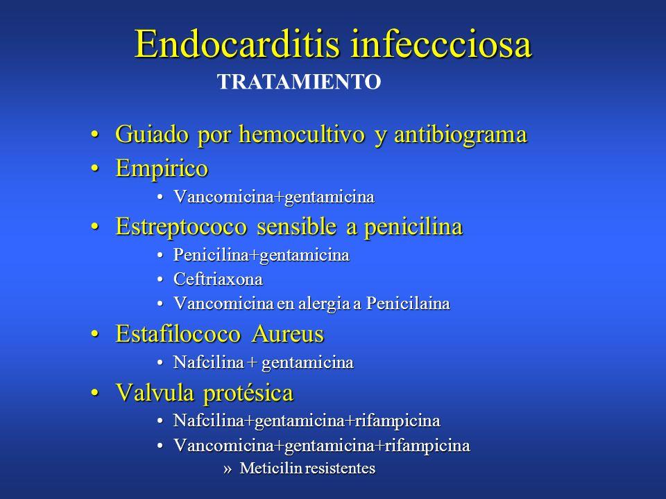 Endocarditis infeccciosa