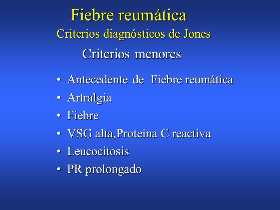 Fiebre reumática Criterios menores Criterios diagnósticos de Jones