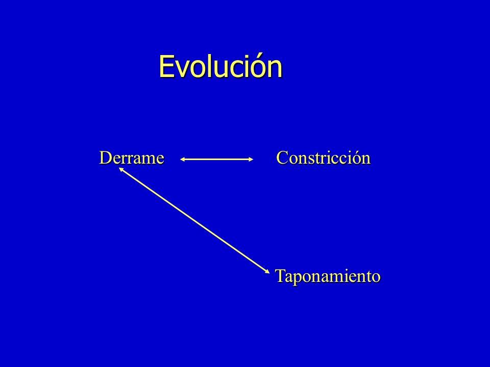 Evolución Derrame Constricción Taponamiento