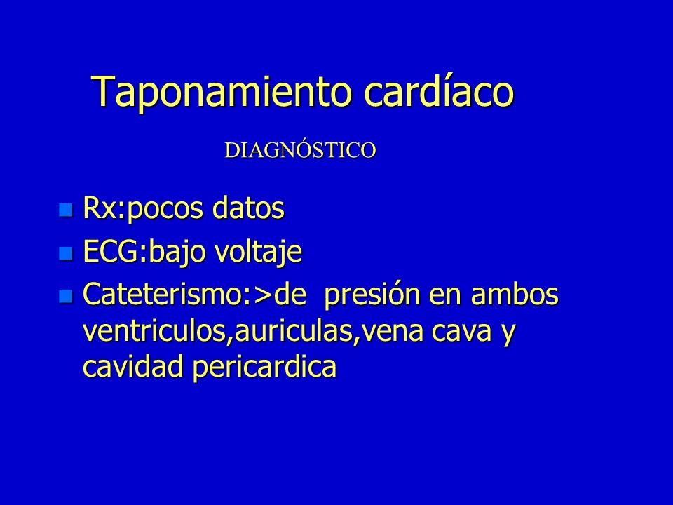 Taponamiento cardíaco
