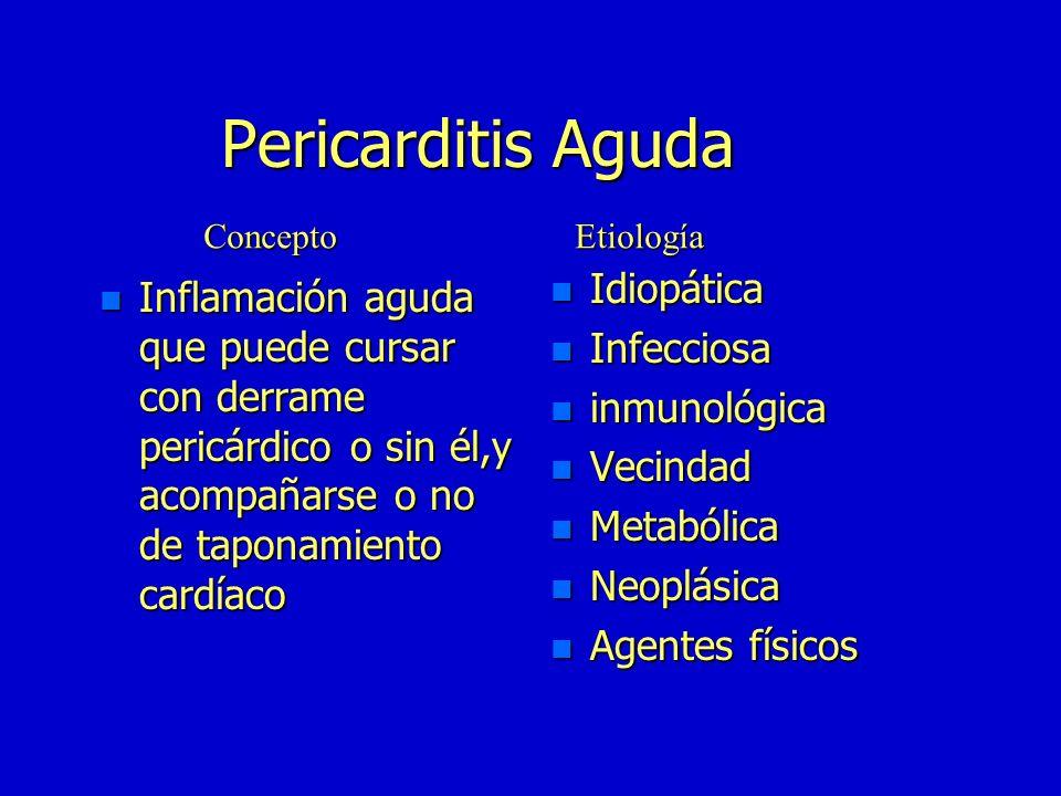 Pericarditis Aguda Idiopática