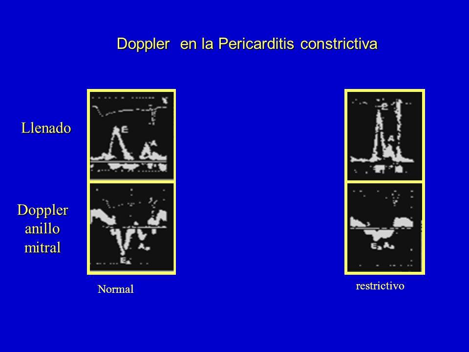 Doppler en la Pericarditis constrictiva