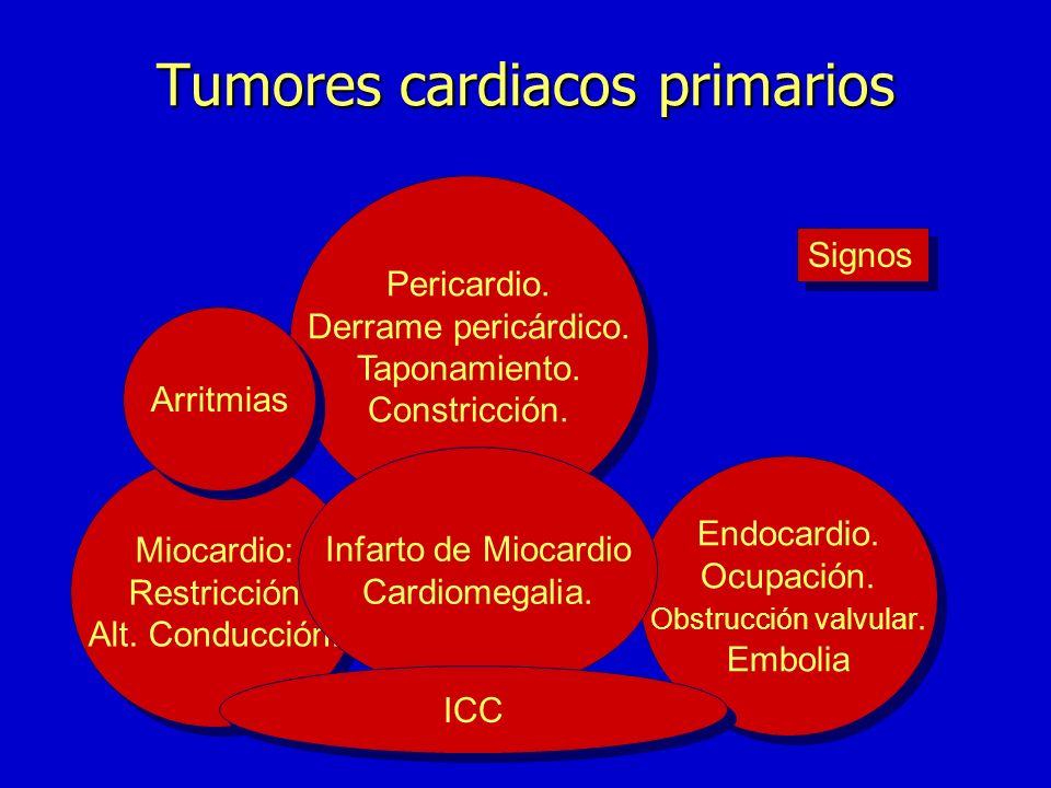 Tumores cardiacos primarios