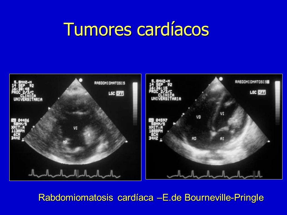 Tumores cardíacos Rabdomiomatosis cardíaca –E.de Bourneville-Pringle