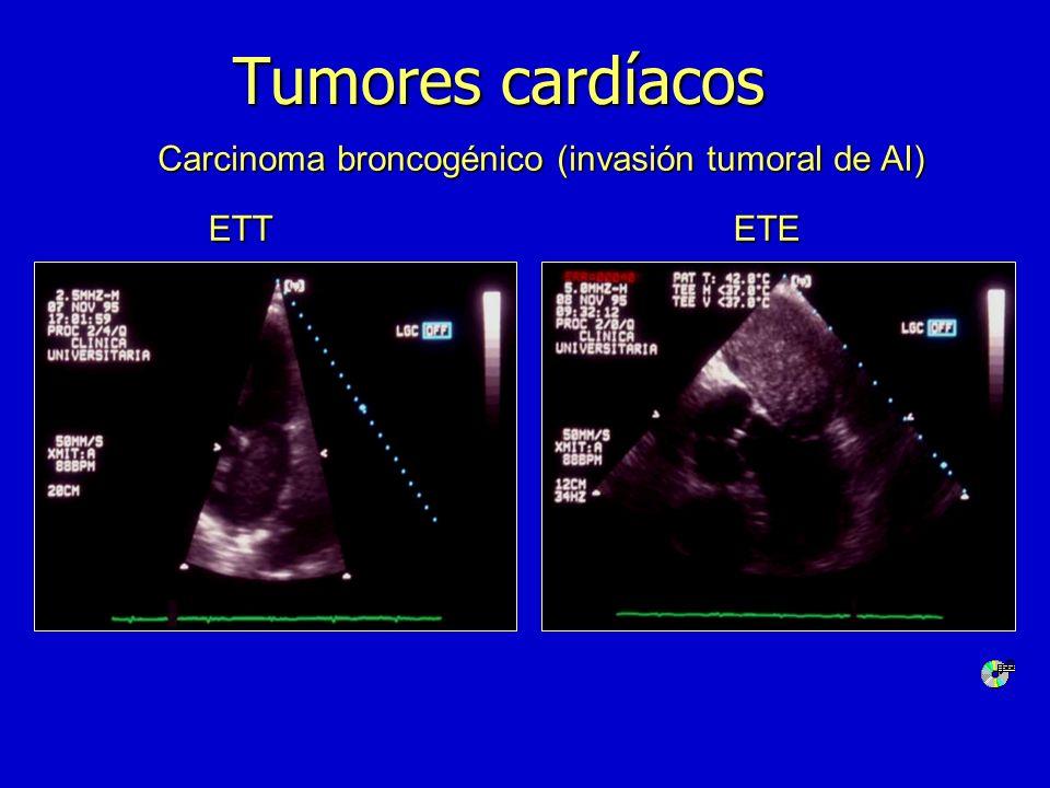Tumores cardíacos Carcinoma broncogénico (invasión tumoral de AI)