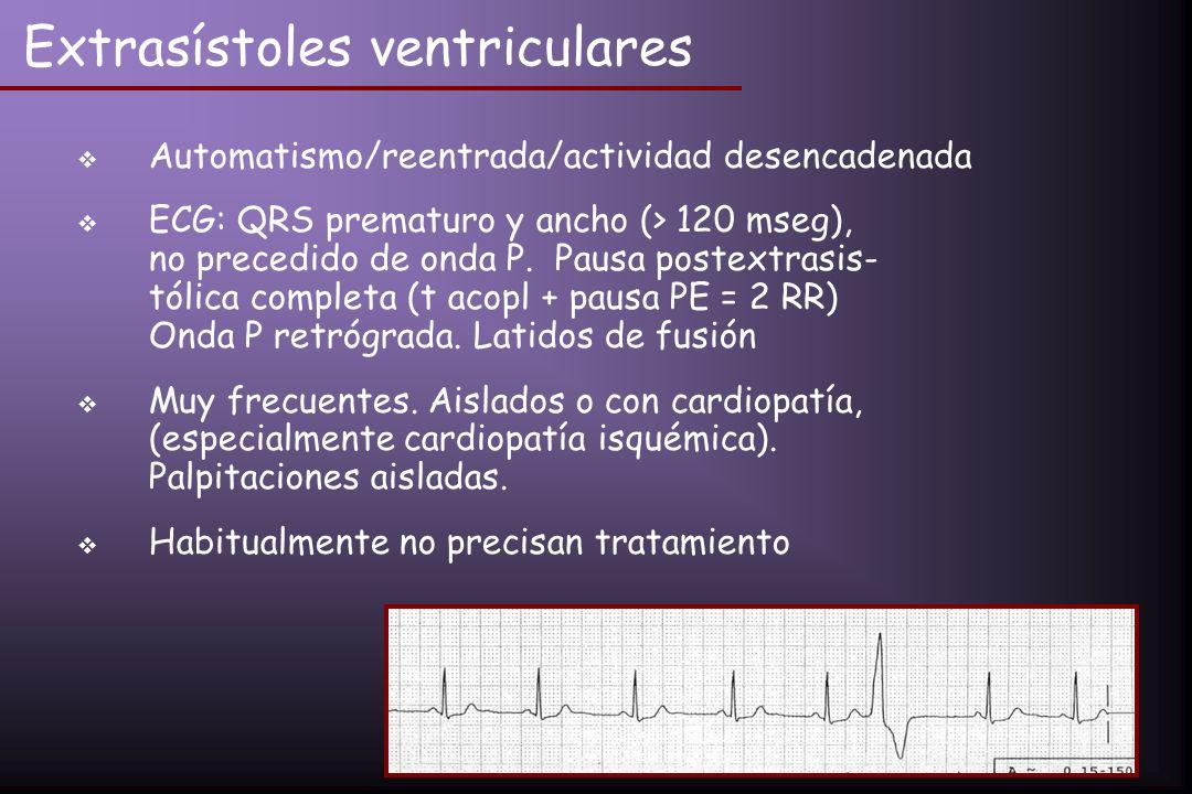 Extrasístoles ventriculares