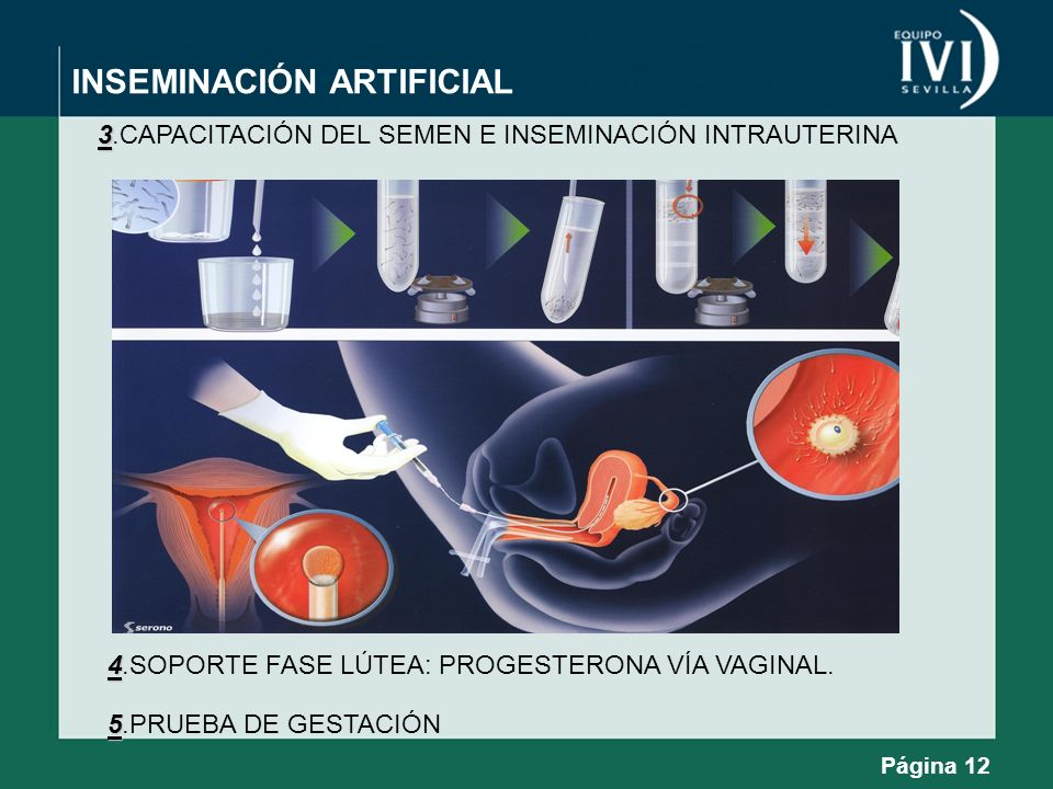 INSEMINACIÓN ARTIFICIAL