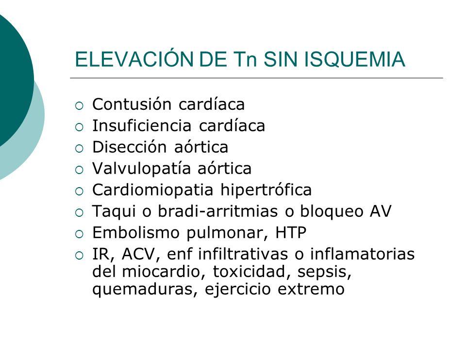 ELEVACIÓN DE Tn SIN ISQUEMIA