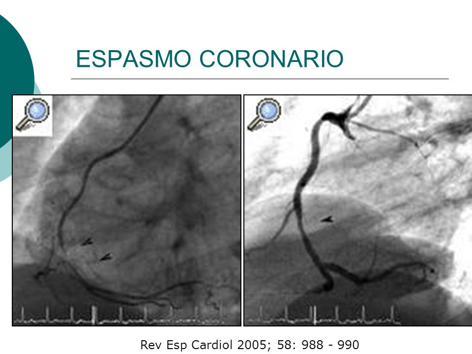 ESPASMO CORONARIO Rev Esp Cardiol 2005; 58: