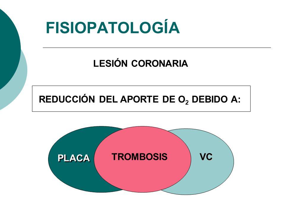FISIOPATOLOGÍA LESIÓN CORONARIA REDUCCIÓN DEL APORTE DE O2 DEBIDO A: