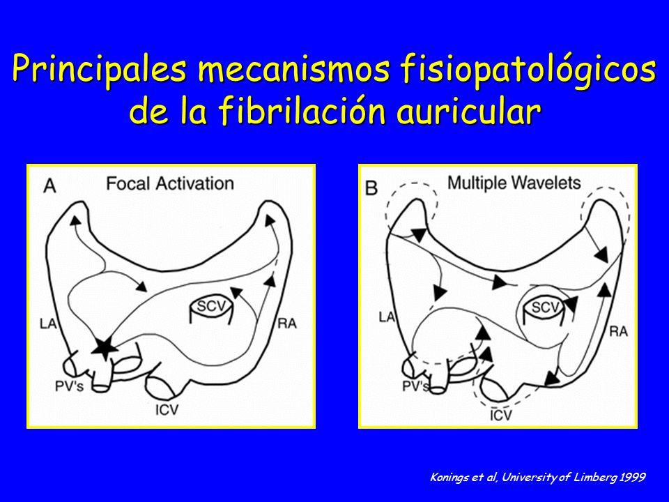 Principales mecanismos fisiopatológicos de la fibrilación auricular