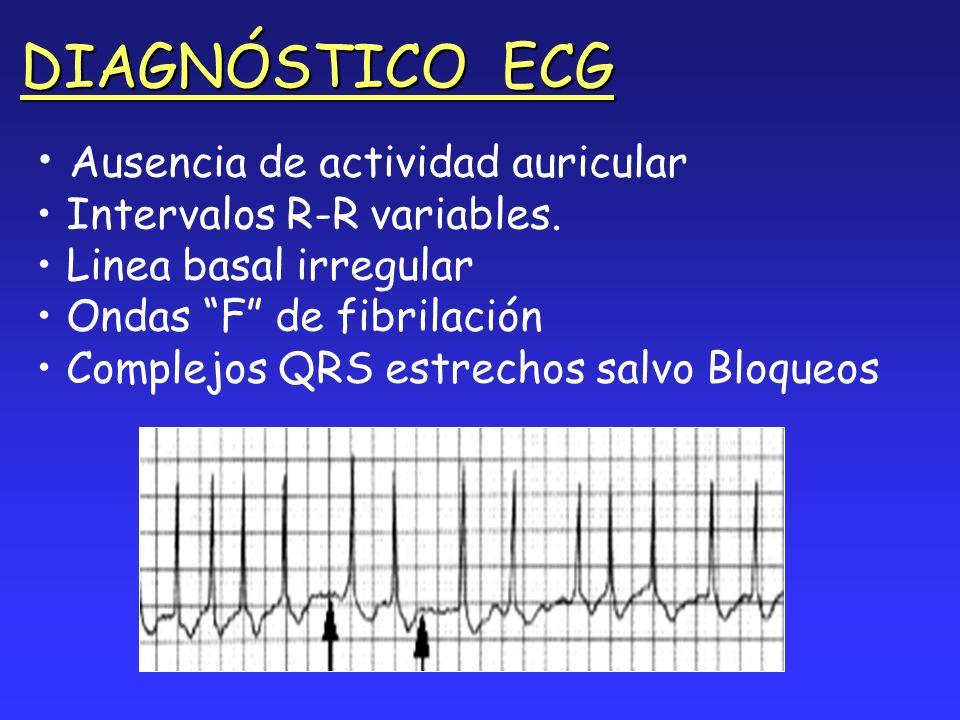 DIAGNÓSTICO ECG Ausencia de actividad auricular