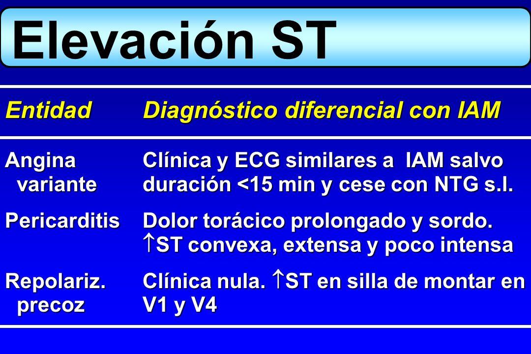 Elevación ST Entidad Diagnóstico diferencial con IAM