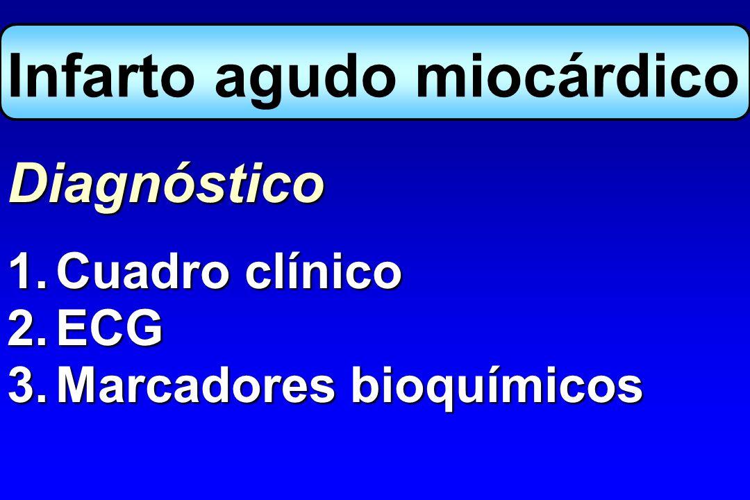 Infarto agudo miocárdico