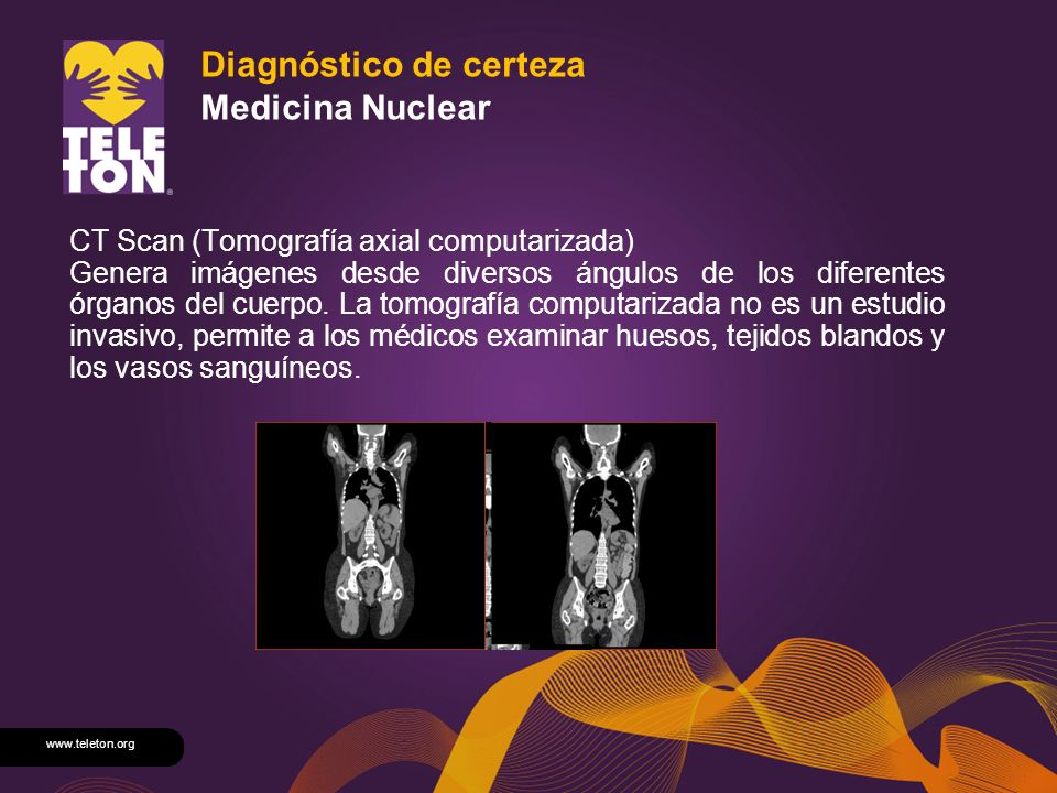 Diagnóstico de certeza Medicina Nuclear