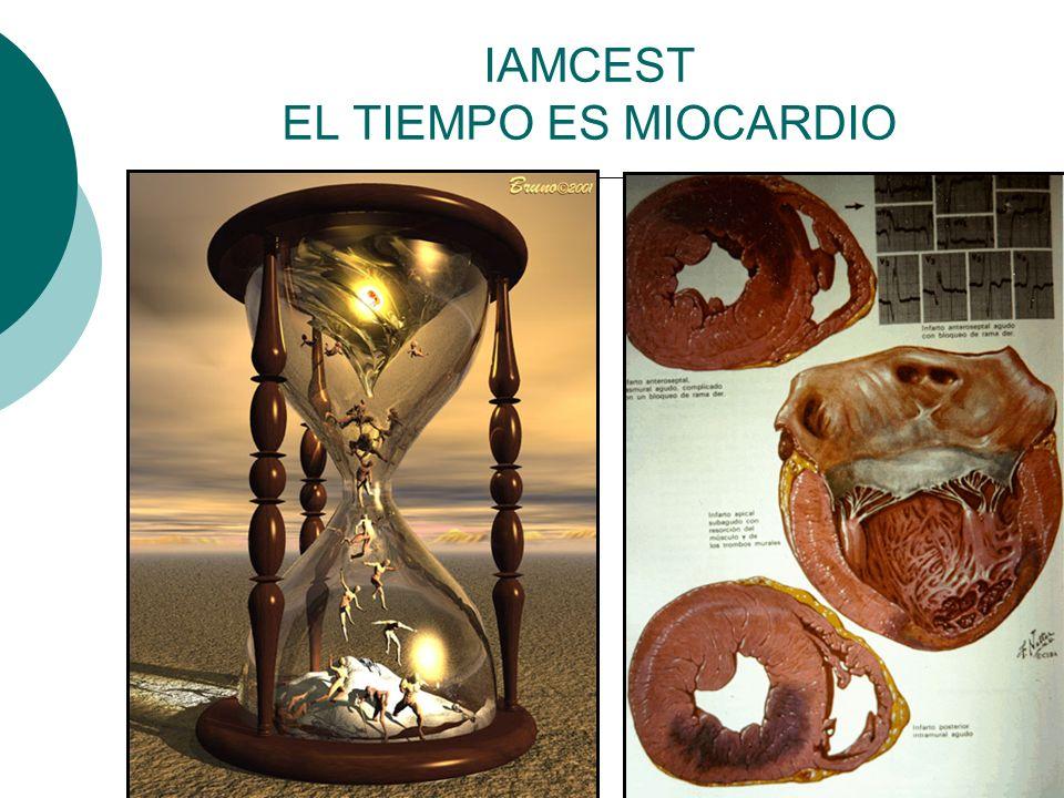 IAMCEST EL TIEMPO ES MIOCARDIO