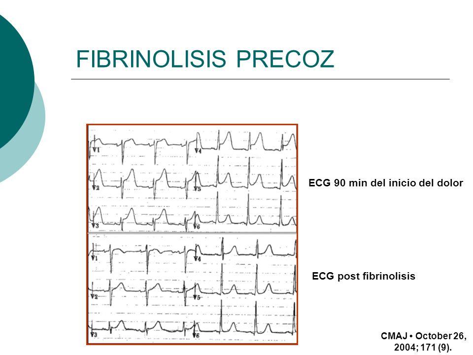 FIBRINOLISIS PRECOZ ECG 90 min del inicio del dolor