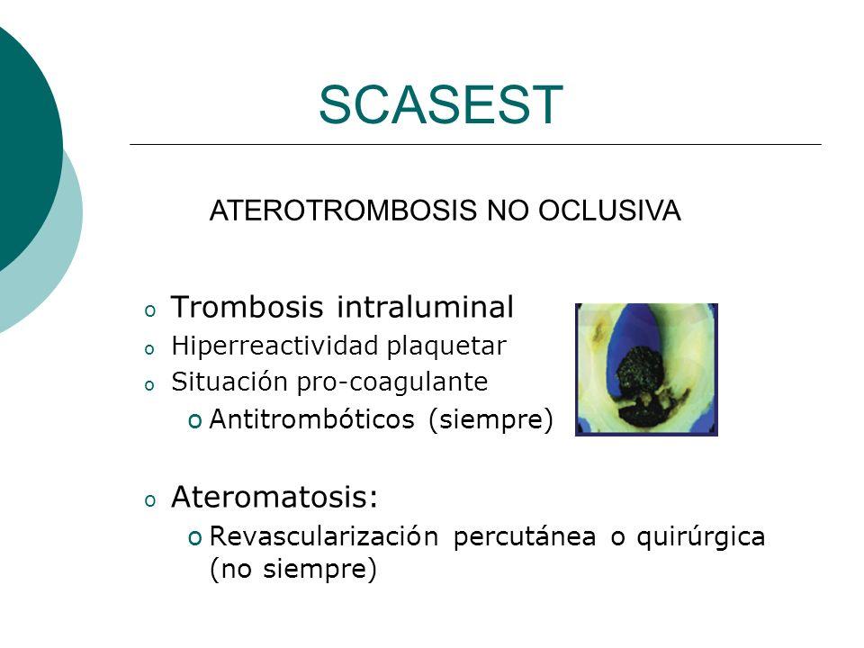 SCASEST Trombosis intraluminal Ateromatosis: