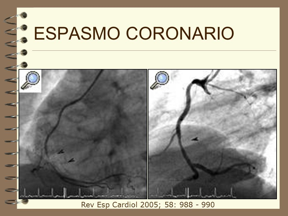 ESPASMO CORONARIO Rev Esp Cardiol 2005; 58: 988 - 990