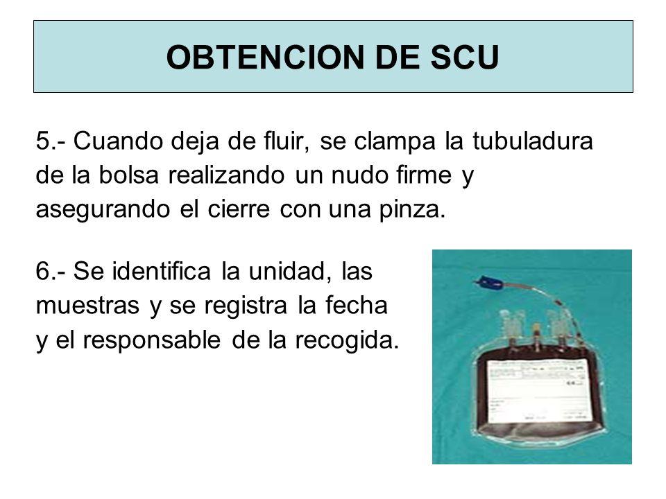 OBTENCION DE SCU 5.- Cuando deja de fluir, se clampa la tubuladura