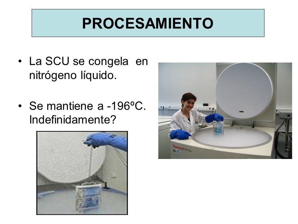 PROCESAMIENTO La SCU se congela en nitrógeno líquido.