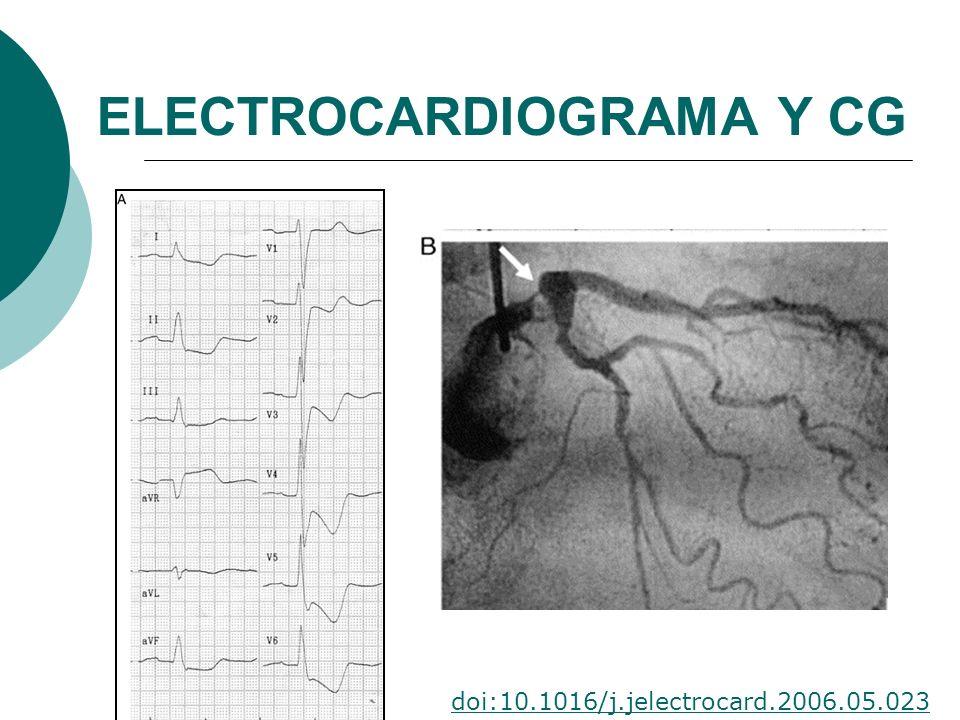 ELECTROCARDIOGRAMA Y CG