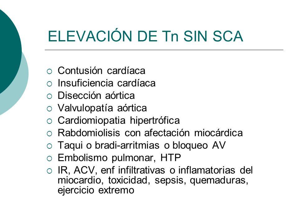ELEVACIÓN DE Tn SIN SCA Contusión cardíaca Insuficiencia cardíaca