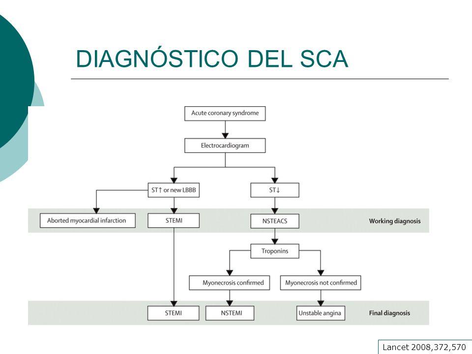 DIAGNÓSTICO DEL SCA Lancet 2008,372,570