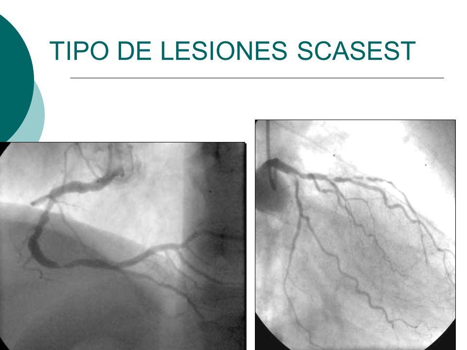 TIPO DE LESIONES SCASEST