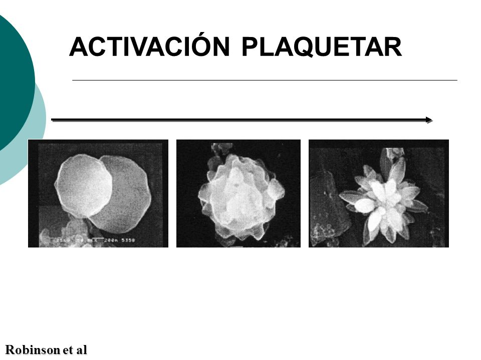 ACTIVACIÓN PLAQUETAR Robinson et al