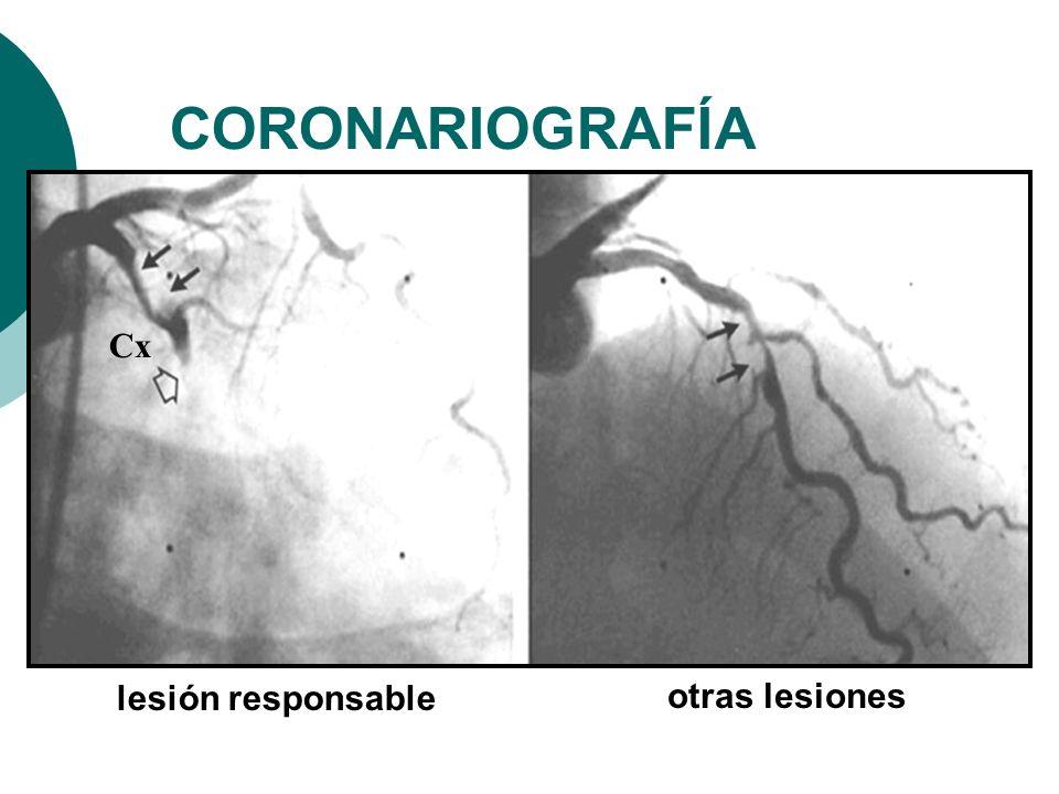 CORONARIOGRAFÍA Cx lesión responsable otras lesiones