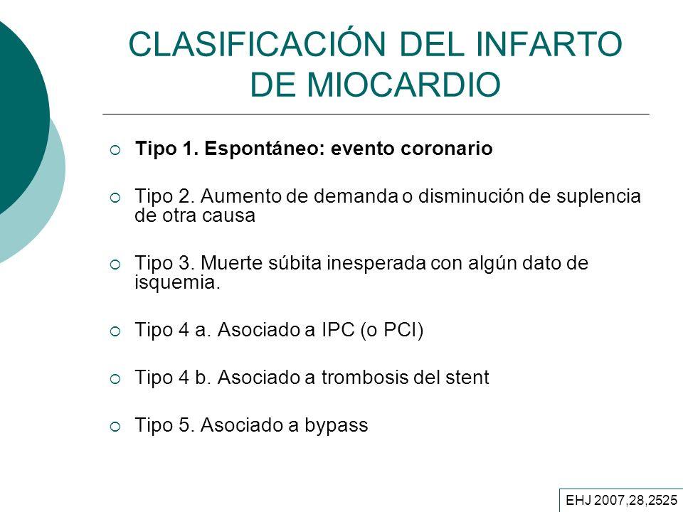 CLASIFICACIÓN DEL INFARTO DE MIOCARDIO