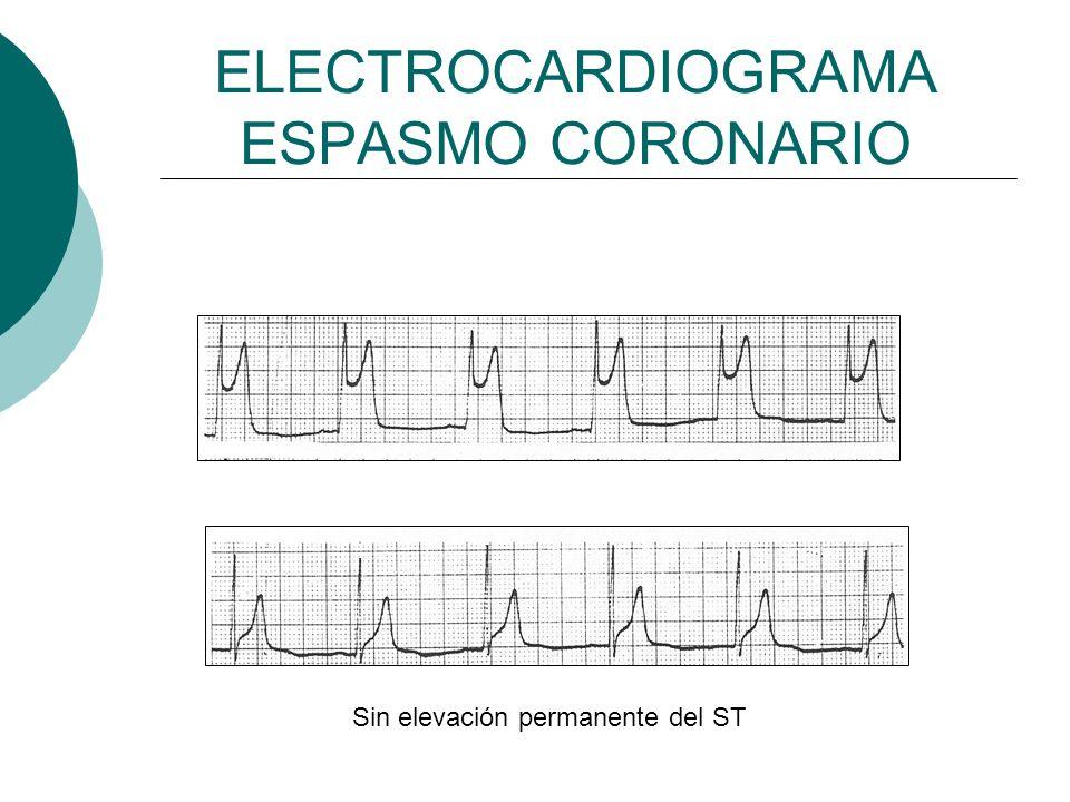ELECTROCARDIOGRAMA ESPASMO CORONARIO